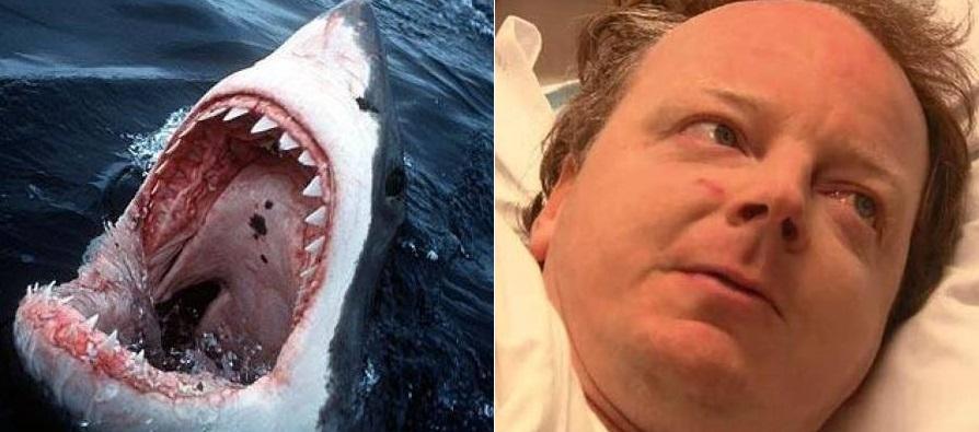 σέρφερ καρχαρίας επίθεση