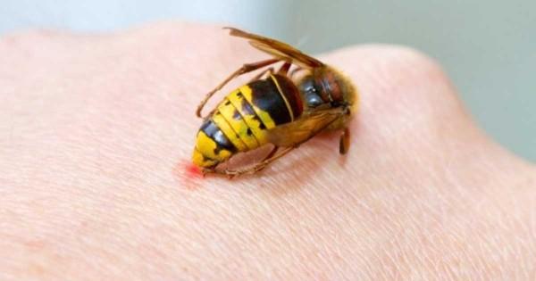 Τι πρέπει να κάνετε όταν σας τσιμπήσει σφήκα, μέλισσα ή σκορπιός;