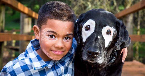 Αγόρι μισούσε τη δερματική του ασθένεια μέχρι που συνάντησε αυτόν τον σκύλο με την ίδια πάθηση