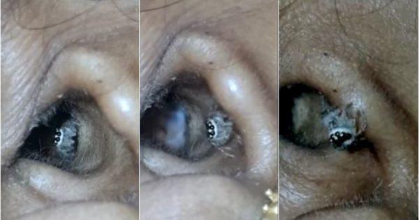 Γυναίκα πήγε στο νοσοκομείο με έντονο πονοκέφαλο και ο γιατρός της έβγαλε από το αυτί μια ζωντανή αράχνη
