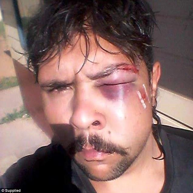 Κυνηγός προσπάθησε να σκοτώσει καγκουρό και το ζώο του επιτέθηκε και του βούλωσε το μάτι