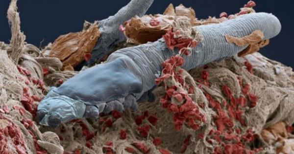 Αυτά τα μικροσκοπικά έντομα ζουν στο πρόσωπο όλων μας! (pics)