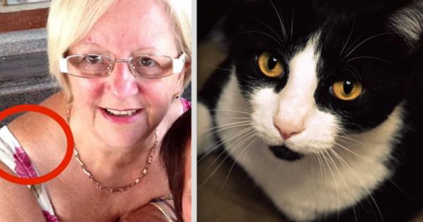 Αυτή η 64χρονη δεν είχε ιδέα τι μεγάλωνε στον ώμο της. Η γάτα της όμως κατάλαβε, ότι κάτι δεν πήγαινε καλά. (Εικόνες)